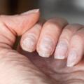 ongles abimés